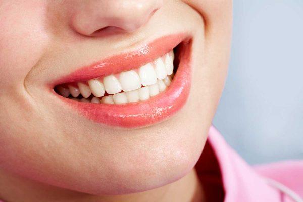 Cosmetic White dental fillings Houston