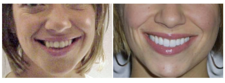 Before and After Houston Dentist Texas