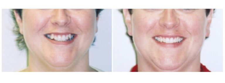 Before and After Houston Dentist Urbn Dental