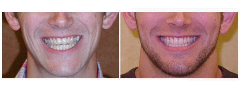 Before and After Houston Dentist