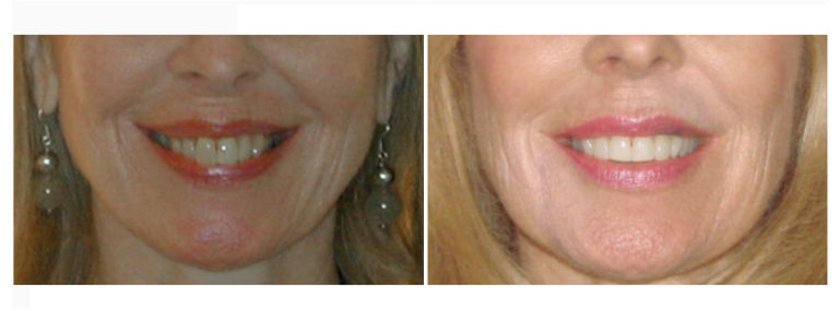 Urbn Dental Before and After Houston Dentist
