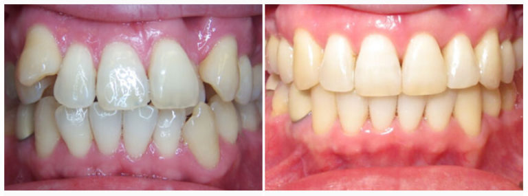 Before and After Houston Dentist Midtown
