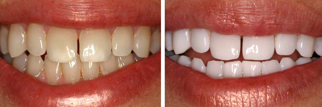 Urbn Dental Before and After