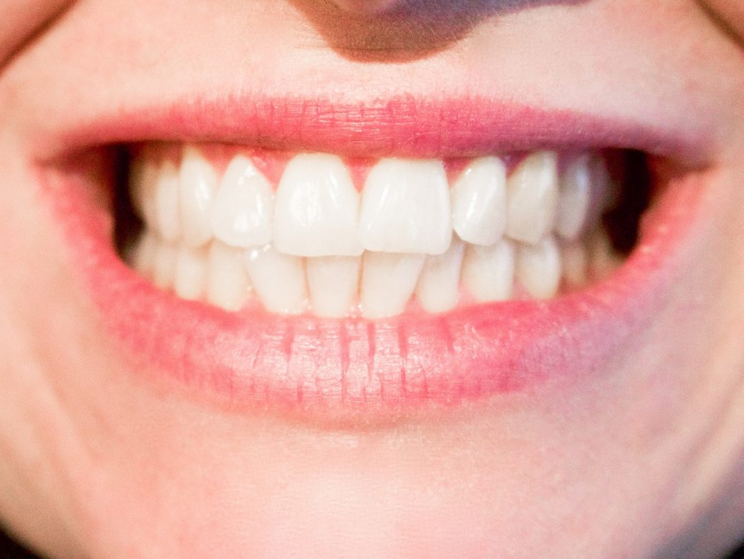 How an Emergency Dentist Near Me can Help with Abscess