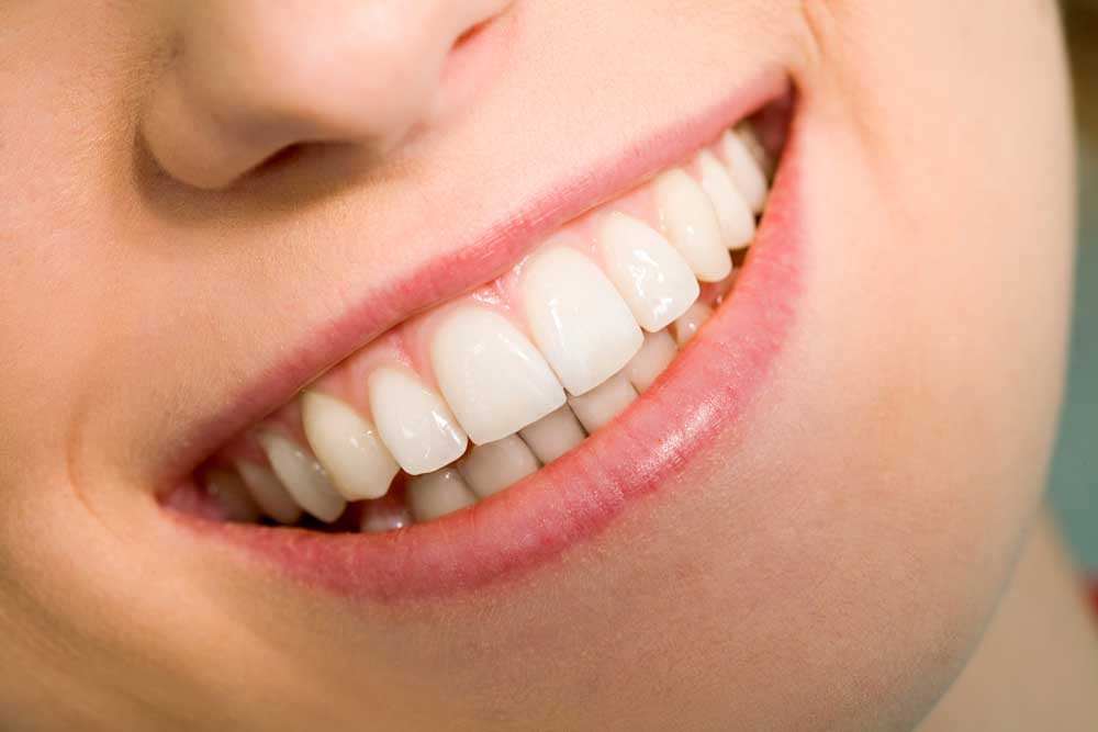 Home Remedies To Whiten Teeth Uptown Dentist In Houston Tx