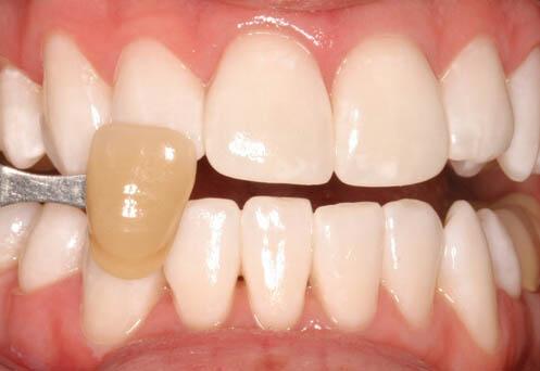 KöR Teeth Whitening After