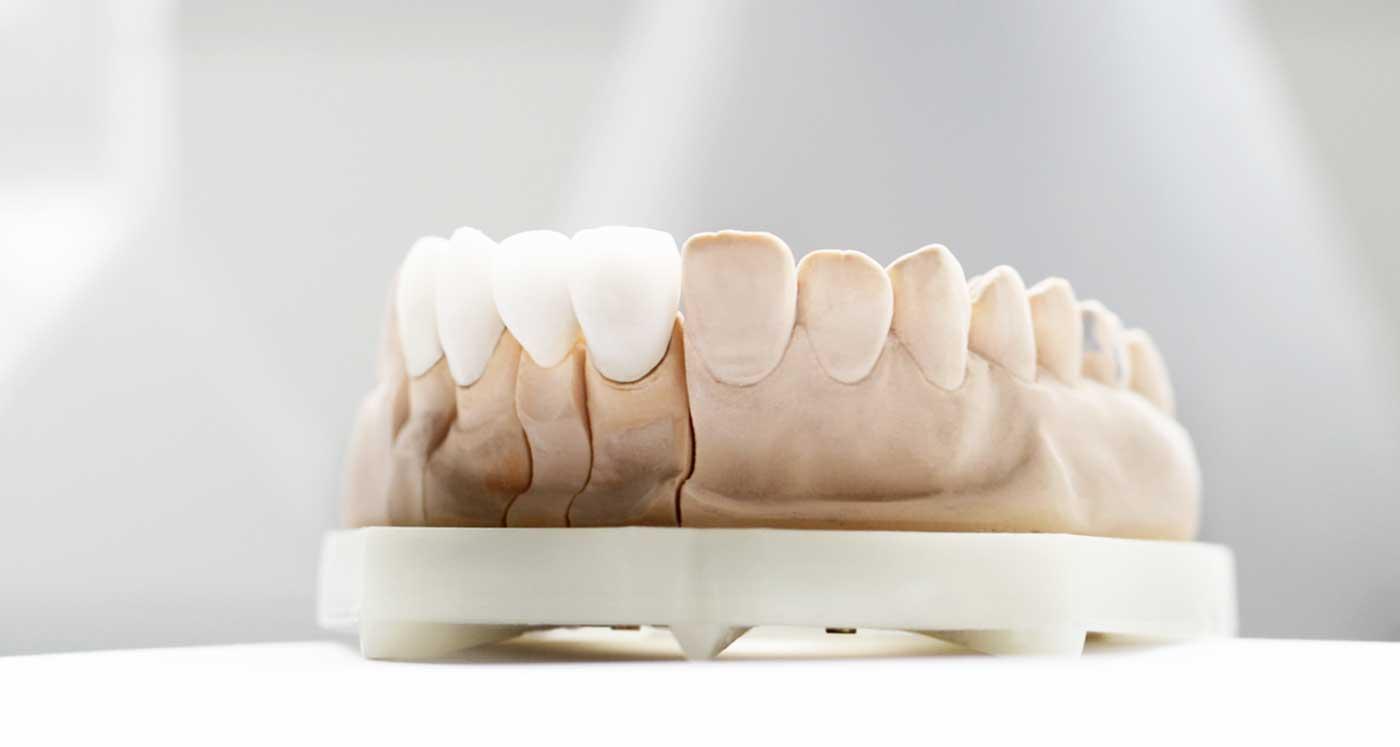 houston-veneer-dentist.jpg