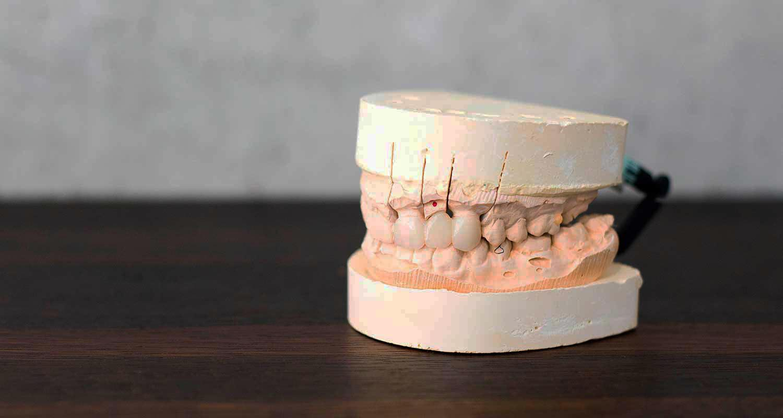 Porcelain Crowns and Bridges Dental Care   URBN Dental in Houston TX