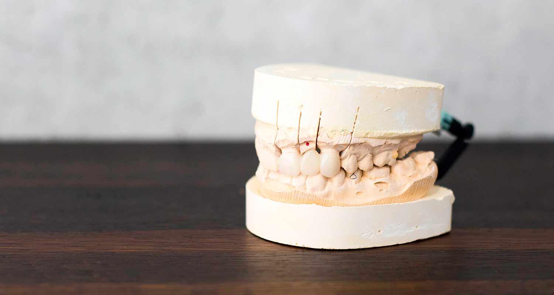 Porcelain Crowns & Bridges Urbn Dental