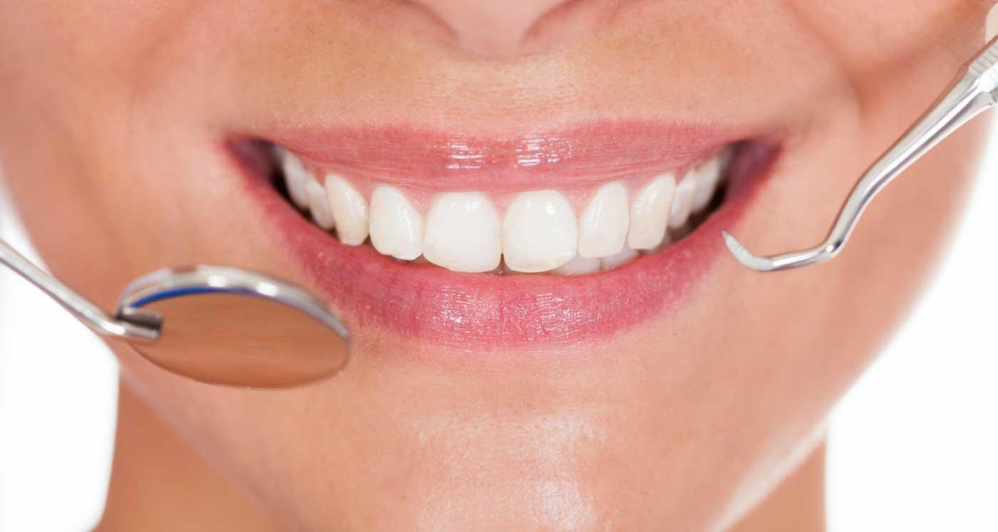 Urbn Dental Smile Makeover