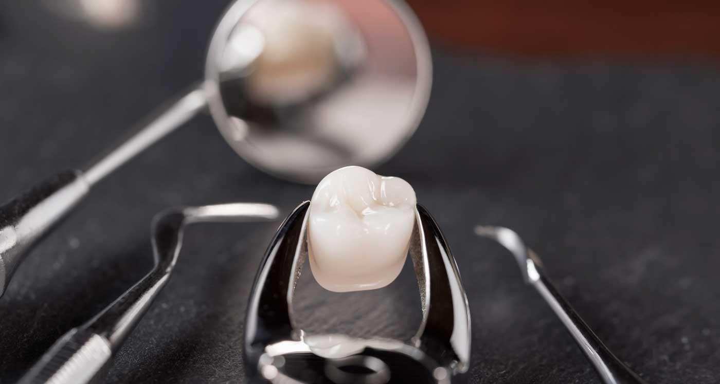 Impacted Wisdom Teeth Removal   Impacted Wisdom Tooth - URBN Dental