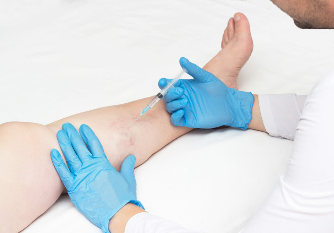 When looking for the best vein center in Long Island, there are a couple of crucial factors to consider. This article helps you find the best vein centers in Long Island.