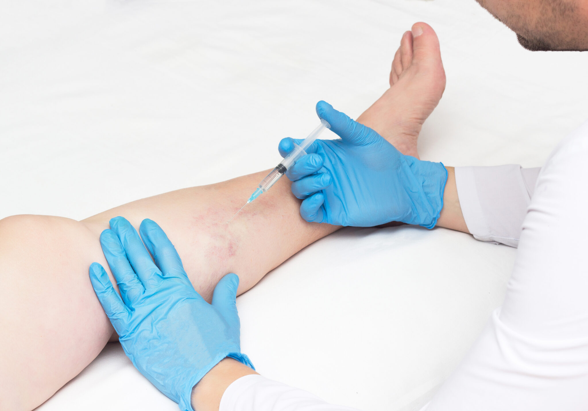 You deserve the best care available for your body. Unfortunately, if you are not a medical professional, you may not know what to look for when selecting the right vein treatment center with the right vein doctors to treat your spider and varicose veins. But don't worry; we are here to help. Keep reading to find out the eight qualities that the best vein specialists have so you can know who to go to for your treatment!